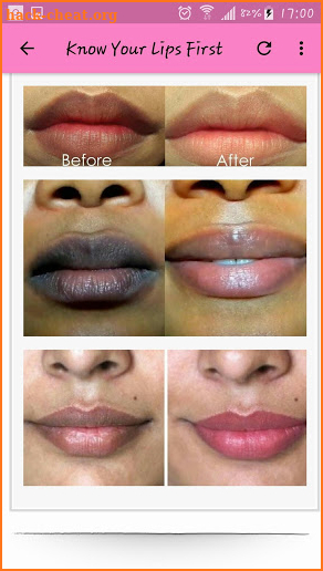 13 Home Remedies To Get Soft Pink Lips Naturally screenshot